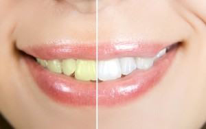Teeth whitening for free in Hillsville